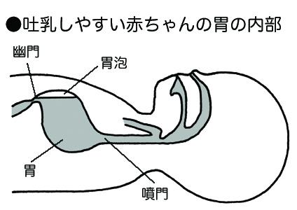 胃食道逆流(噴門弛緩症)(いしょくどうぎゃくりゅう)