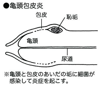 包皮 炎 治療 亀頭