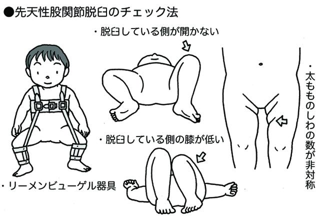 脱臼 赤ちゃん 肩