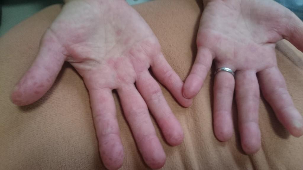 手足口病 写真